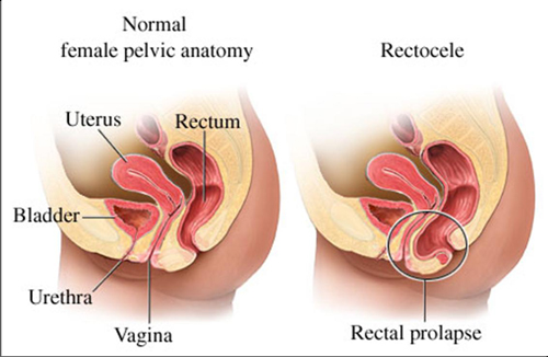 Rectocele_Anatomy